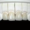 product - Cosmetic Dentistry